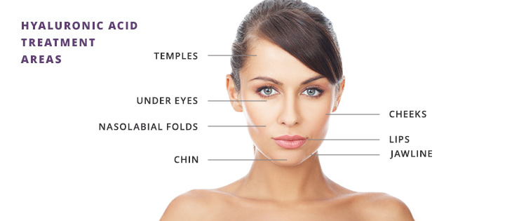 Advantages of Hyaluronic Acid nonsurgical injections