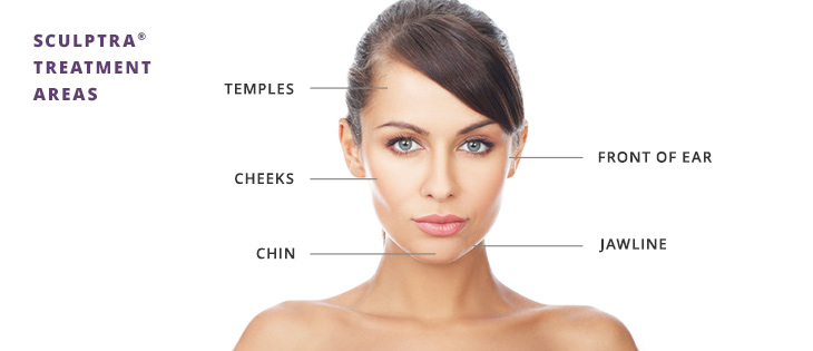 Sculptra non-surgical injection benefits